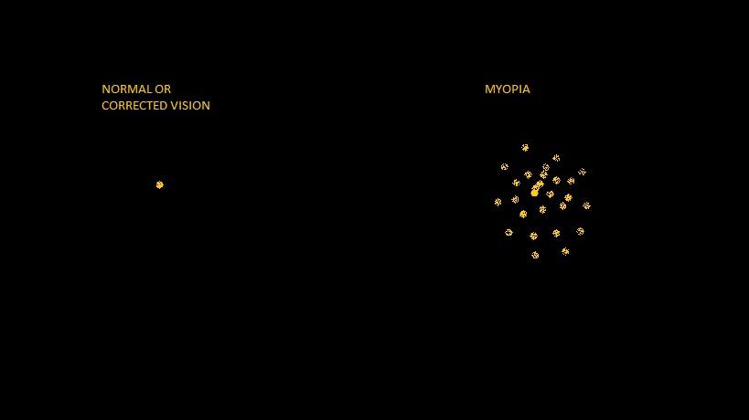 MYOPIC BLUR.jpg